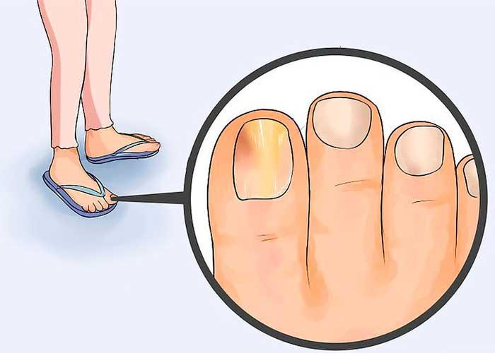 Remedios caseros para los hongos en las uñas.