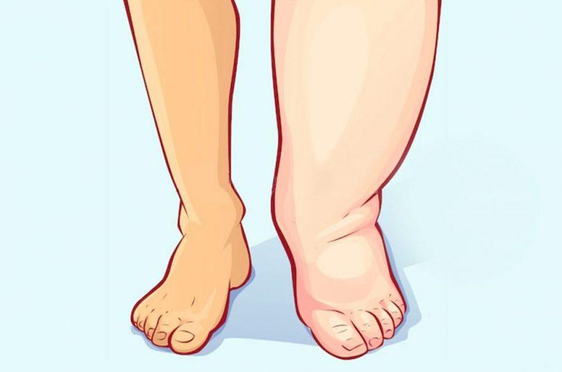 remedios caseros para la retención de líquidos en los pies